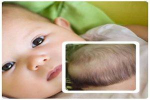 rụng tóc vành khăn ở trẻ