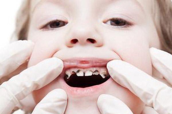 phòng ngừa sâu răng sớm cho trẻ