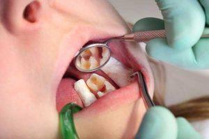 sâu răng sớm ở trẻ